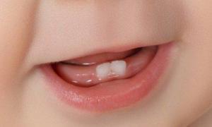 Могут ли зубы прорезываться без боли: лайфхаки для мам