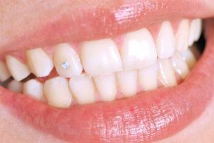 Керамические виниры – быстрый способ обрести идеальную улыбку. Об этапах установки и противопоказаниях рассказывает эксперт